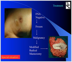 Breast Cancer Surgeon In Ahmedabad