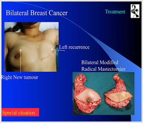 Breast Cancer Doctors in Ahmedabad