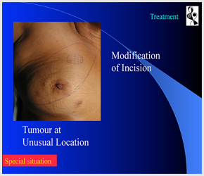 Breast Cancer in Ahmedabad